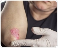 Study: Protein known to playkey role in psoriasis can be blocked without posing risk to patients