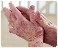 IBS scientists invent hydrogel to combat rheumatoid arthritis
