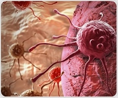 Genetic signature within prostate cancer cells can predict metastatic tumors