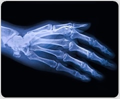 New drug offers hope for osteoarthritis patients suffering from debilitating hand pain