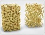 Air pollution may exacerbate osteoporosis