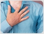 Hyperhidrosis Prognosis and Epidemiology