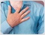 Hyperhidrosis Prognosis and Epidemiology