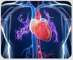 NYU Langone Health launches new heart transplant program