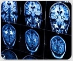 Epilepsy associated with volume and thickness differences in brain matter