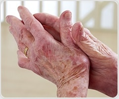 Women with rheumatoid arthritis suffer greater decline in physical function after menopause