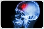 Amyloid protein may be transmitted through neurosurgical instruments, study suggests