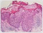 Bowen's Disease Signs and Symptoms