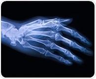 Failed osteoarthritis drug may help lessen opioid dependence