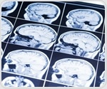 Boosting the brain's immune cells may prevent or reduce severity of Alzheimer's disease