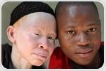 Albinism Diagnosis