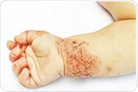New suggests different approach to eczema treatment