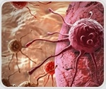 University Hospital of Santiago de Compostela participates in large pancreatic cancer study