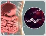 Campylobacteriosis Symptoms