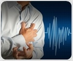 Inflammatory bowel disease linked to elevated risk of heart attack