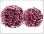 TP53 as a Tumor Suppressor