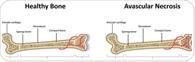Avascular Necrosis (Osteonecrosis)