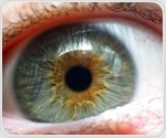 First-in-human clinical trial of retinal implant to treat dry AMD