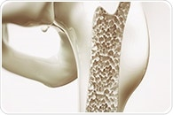 NIH study uncovers genetic basis of 'dripping candle wax' bone disease