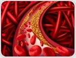 Endovascular Thrombectomy in the Treatment of Embolisms