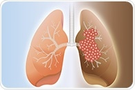 Study challenges use of whole-brain radiation for small-cell lung cancer patients with brain metastases