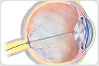 Aging immune cells increase risk for macular degeneration