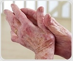 Study on arthritis prevalence and trends reveals unexpected findings