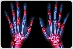 Environmental pollutants found to worsen rheumatoid arthritis