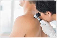 Study highlights impact of early detection on skin cancer survival
