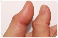 Bowler's Thumb Prevention and Treatment
