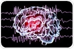 Study uncovers mechanism underlying brain malformation linked to severe epilepsy