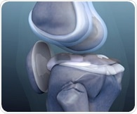 Guideline revisions for knee osteoarthritis have 'subtle but significant' impact on clinical practice