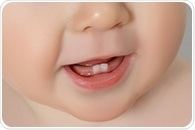 Zinc and copper metabolism in baby teeth may help predict ASD risk