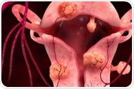 Uterine Artery Embolization: Technique and Complications