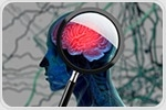 Scientists discover potential approach to treat common cause of dementia and stroke