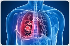 Low Blood Levels of Vitamin D Linked to Increased Risk of Interstitial Lung Disease