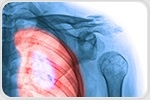 Phenotyping of Chronic Obstructive Pulmonary Disease (COPD)