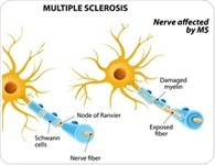 Anti-Myelin Antibodies in Multiple Sclerosis