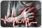 Study reveals early signs of cardiac impairment in patients with newly diagnosed lupus