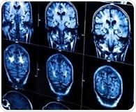 Simple pHimbalance could bea root of Alzheimer's disease, mouse study shows