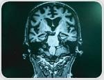 Mixed Dementia Symptoms and Diagnosis