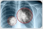 Inhibition of NOVA1 gene helps prevent growth of lung cancer tumors
