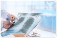 Lung Plethysmography Procedure