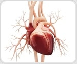 Key signaling protein in Huntington's disease found to have deleterious effects on heart function, shows study