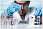 Study: Blood test can predict response of advanced prostate cancer patients to treatments