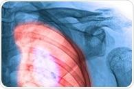Lung Cancer Risk Factors