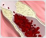 Study: Postmenopausal factors may impact heart-protective qualities of 'good cholesterol'