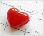 AHA and ADA launch new initiative to help people with type 2 diabetes reduce heart disease risk