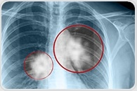 New nuclear medicine tracer could improve diagnosis, treatment of non-small cell lung cancer