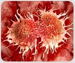 New potential immunotherapy target in pancreatic cancer identified